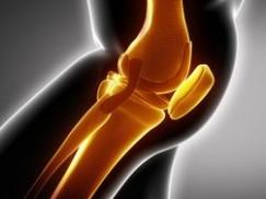 膝关节疼痛的病因和防治,健康常识