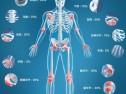 如何治疗强直性脊柱炎?