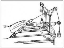 骨科常见部位经典牵引方法
