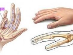 腱鞘炎的临床诊断及治疗方法