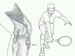 胫骨结节骨软骨炎的病因与治疗