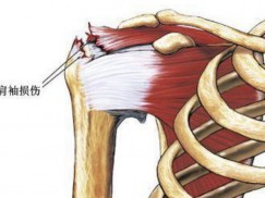 肩袖损伤和肩周炎的症状与康复治疗