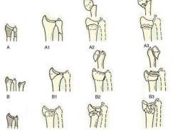 桡骨远端骨折手法复位及康复注意事项