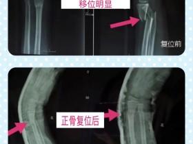 正骨手法复位患者案例