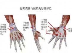 腱鞘囊肿的病因,症状及治疗办法